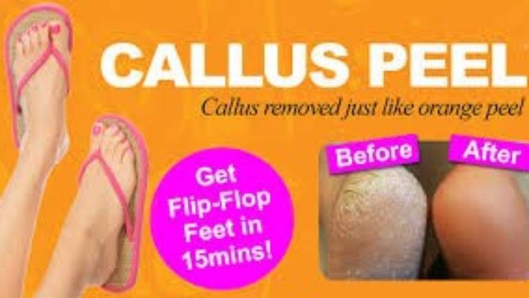 Well Max Callus Peel Treatment