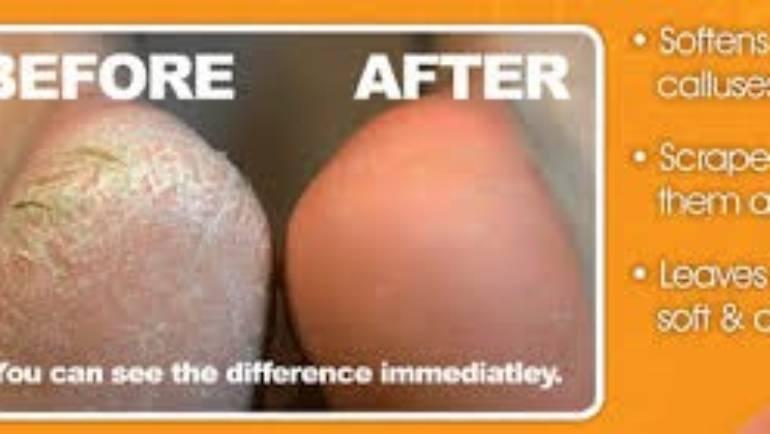 Wellmax callus peel treatment